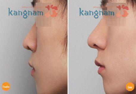 Nâng mũi không phẫu thuật ở đâu đẹp?