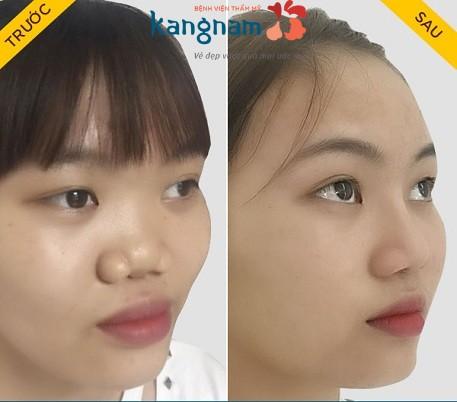 Nâng mũi ở đâu đẹp nhất tại Hà Nội và TP.Hồ Chí Minh