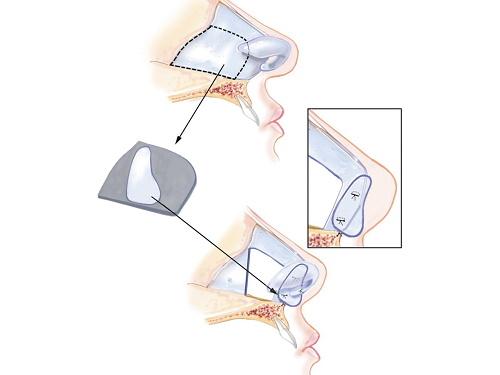 nâng mũi cấu trúc 4D NanoForm
