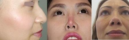 Đối tượng nên chọn nâng mũi bọc sụn tại Kangnam