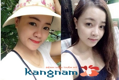 Quyền Lâm thay đổi cuộc đời nhờ nâng mũi bọc sụn tại Kangnam