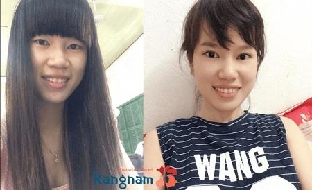 Bạn Thu Trang chia sẻ cắt cánh mũi bao nhiêu tiền?