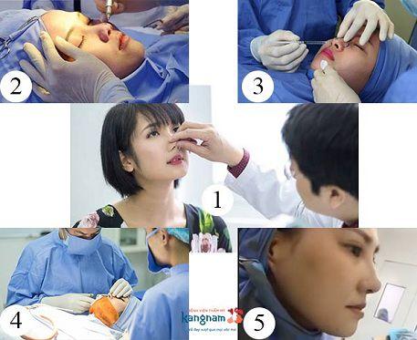Quy trình phẫu thuật nâng mũi tại Kangnam