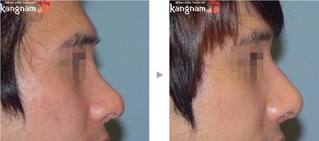 phẫu thuật nâng mũi S line-10