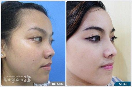 phẫu thuật nâng mũi S line-5