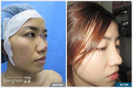 phẫu thuật nâng mũi S line-6
