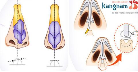 Mô hình giải đáp nâng mũi nếu bị lệch sống mũi