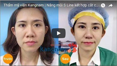 Kết quả thu gọn cánh mũi tại Kangnam