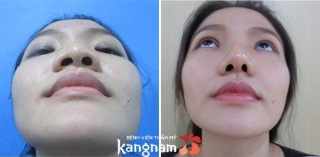 Kết quả thu gọn đầu mũi tại Kangnam