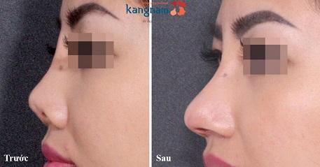 Khác biệt sau nâng mũi S line 3D tại Kangnam