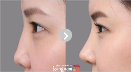 Hình ảnh trước sau nâng mũi S line