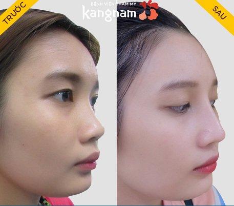 Kết quả nâng mũi bọc sụn tại Kangnam