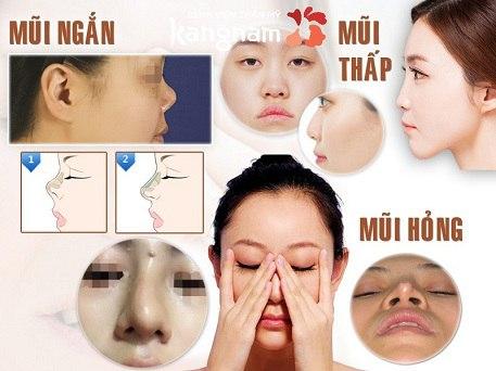 nâng mũi có ảnh hưởng đến khứu giác không-4