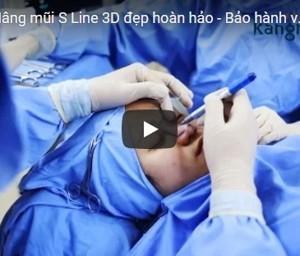 [Video] Nâng mũi S line 3D đẹp hoàn hảo – Bảo hành vĩnh viễn