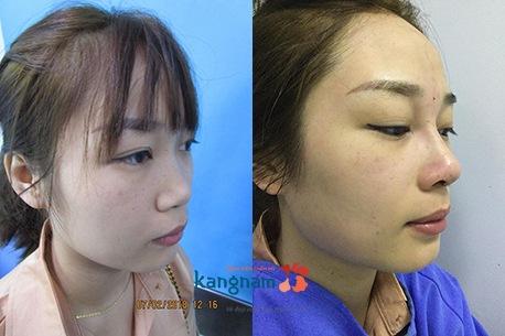 Kết quả nâng mũi S line tại Kangnam