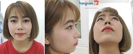 Nâng mũi sline tạo dáng mũi cao - mềm mại cho gương mặt ở mọi góc nhìn