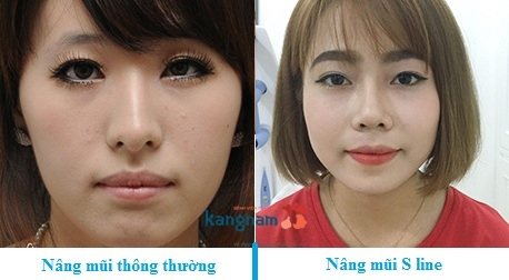 so sánh nâng mũi s line 2