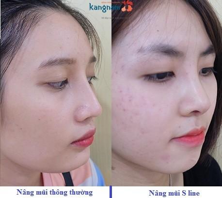 so sánh nâng mũi s line 1