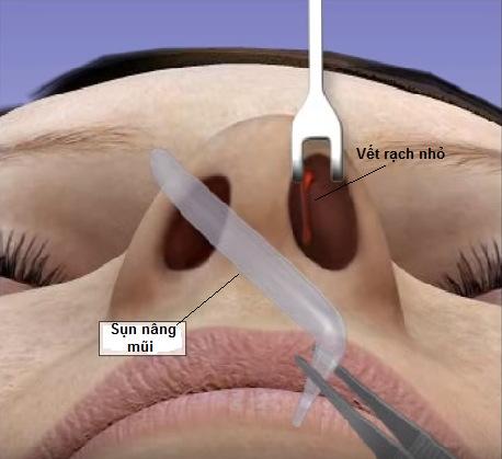 Nâng mũi có đau không, có nguy hiểm không 5