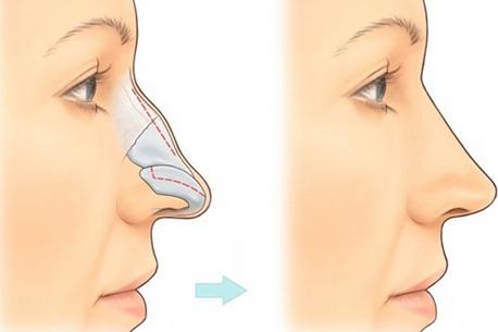 Nâng mũi có đau không, có nguy hiểm không