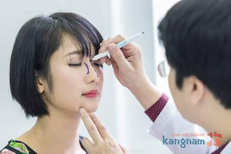 góc nhìn chuyên gia về phẫu thuật nâng mũi S line 1