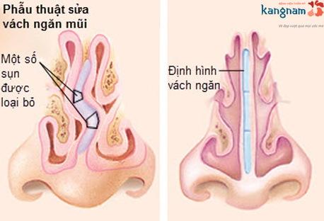 vẹo vách ngăn mũi 7