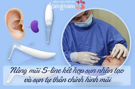 phẫu thuật nâng mũi s line như thế nào-4