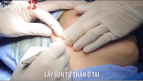 phẫu thuật nâng mũi s line như thế nào-3