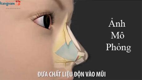 Quy trình nâng mũi s line - đưa chất liệu độn