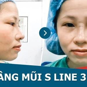 Cận cảnh kết quả nâng mũi SLine 3D đẹp không tì vết