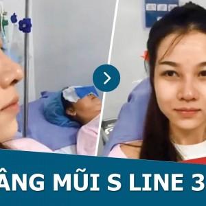 Nâng mũi S Line 3D – Thay đổi hoàn toàn nhan sắc