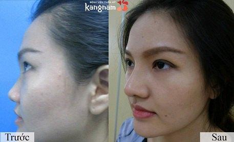 Nâng mũi bọc sụn có đau không? 4