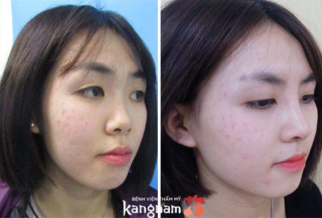 Nâng mũi bọc sụn có đau không? 5