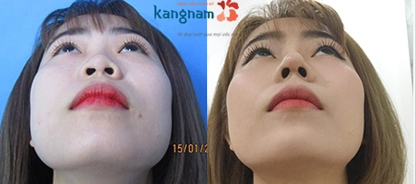 giá phẫu thuật nâng mũi 2