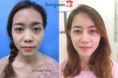 giá phẫu thuật nâng mũi 4