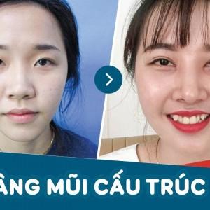 Cận cảnh hình ảnh khách hàng sau 1 tháng nâng mũi