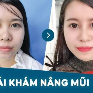 Khách hàng tái khám nâng mũi sau 1 tháng tại Kangnam