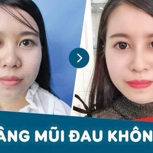 Khách hàng chia sẻ nâng mũi có đau không?