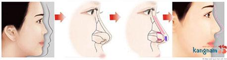 thế nào là mũi tẹt hếch 1