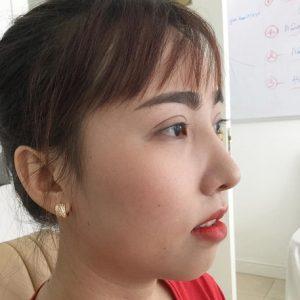 Nâng mũi bao lâu thì đẹp tự nhiên và hết sưng? Cách giảm sưng hiệu quả