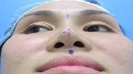 Cắt cánh mũi bao lâu thì lành?