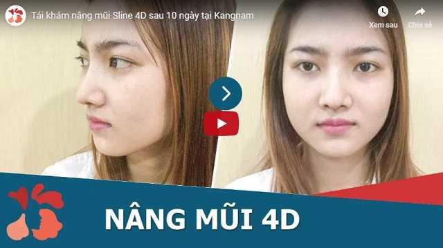 video cách làm mũi cao bằng nâng mũi thẩm mỹ