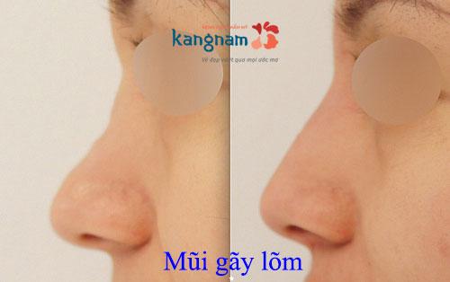 mui--gay-2