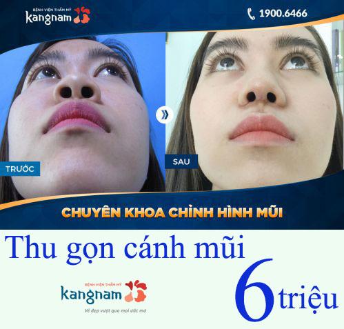 nang-mui-(20)