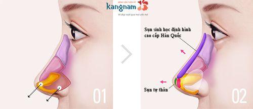 tìm hiểu về nâng mũi bán cấu trúc