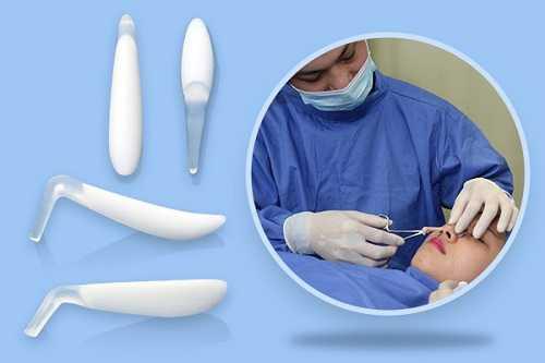 Phẫu thuật nâng mũi giá bao nhiêu