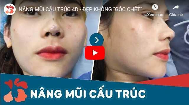 Video bảng giá nâng mũi Kangnam