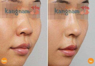 Kết quả 6 Phẫu thuật nâng mũi tại kangnam