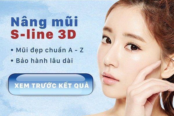 Nâng mũi s line 3D giúp bạn sở hữu mũi đẹp hoàn hảo
