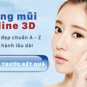 Phẫu thuật nâng mũi S line hàn quốc chuẩn tỷ lệ vàng | BVTM Kangnam